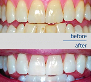 Health Benefits Of Baking Soda For Teeth Whitening Zevect Com