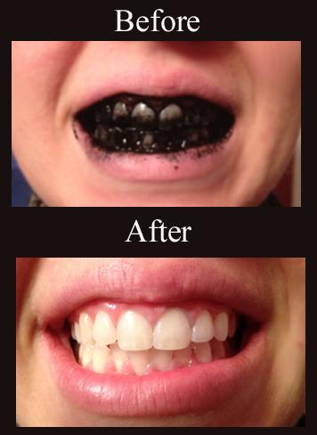 Health Benefits of Baking Soda For Teeth Whitening
