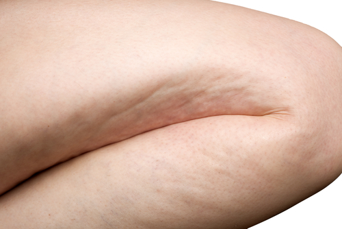 8 Best Tips to Get Rid of Cellulite