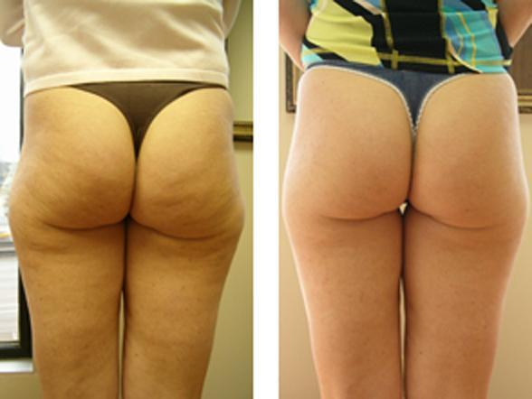 Is there a way to get rid of cellulite