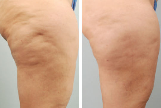 Cellulite treatment at the bottom of the legs